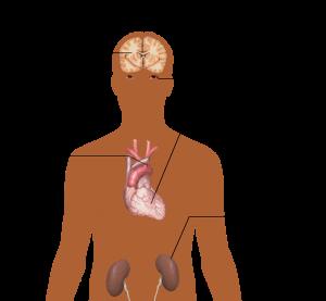 Bluthochdruck - kann Arginin helfen?